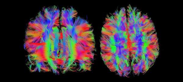 66_Immunsystem_Gehirn